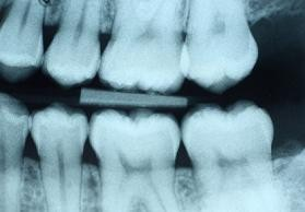 teeth xray close up of molars